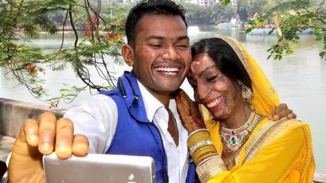 indian acid attack victim finds love