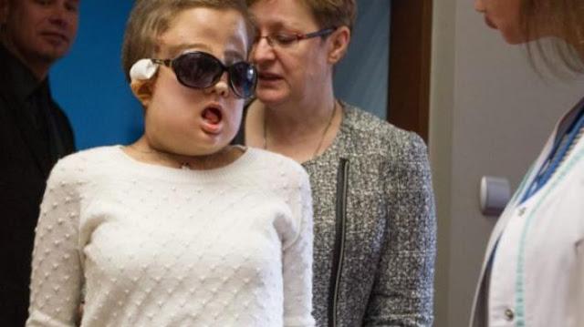 3 Tahun Jalani Operasi Transplantasi, Wajah Wanita Ini Sukses dirubah Jadi Lebih Jelas Setelah Hancur Terserah Tumor