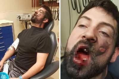 Τραυματίστηκε από έκρηξη ηλεκτρονικού τσιγάρου