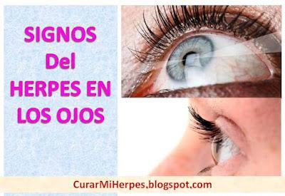 herpes-en-el-ojo-como-curar-tratamiento