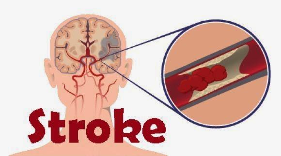 Pengobatan Tradisional Penyakit Stroke