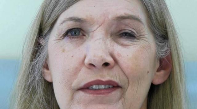 Cara mengobati stroke mata sebelah