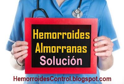 Hemorroides-Almorranas-en-el-Ano-causas-sintomas-tratamiento