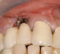 perdida hueso de implantes
