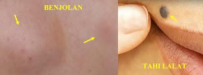 Gejala kolesterol tinggi pada kulit