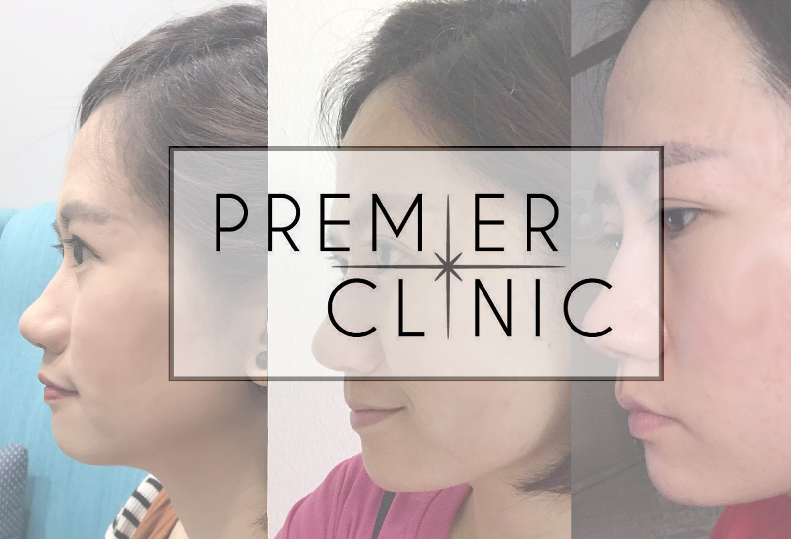 [Beauty Review] Dermal Filler for Nose and Chin Treatment @ Premier Clinic KL City