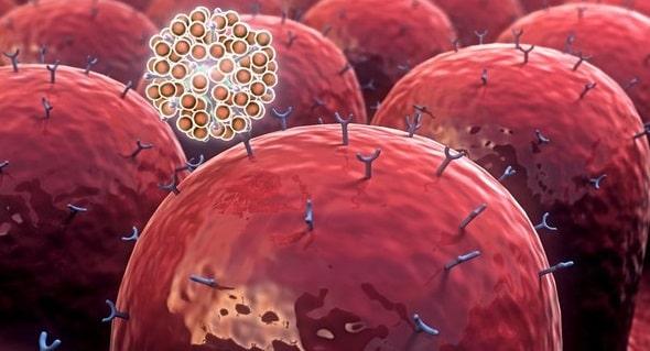 Apa Penyebab Penyakit Autoimun
