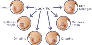 Breast Cancer Symptoms Pictures and Signs