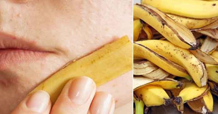 ผลการค้นหารูปภาพสำหรับ ถูหน้าด้วยเปลือกกล้วย