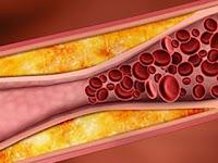 Pengertian kolesterol & Jenis Kolesterol dalam darah