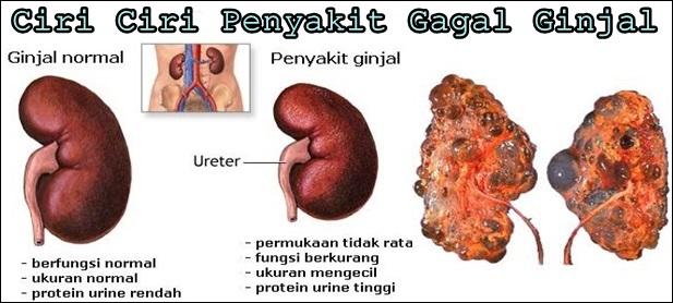 Ciri Ciri Penyakit Gagal Ginjal