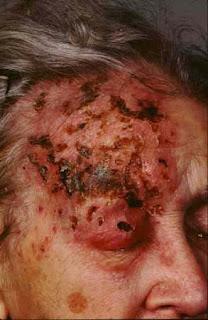Cara Mengobati Penyakit Herpes Di Kepala