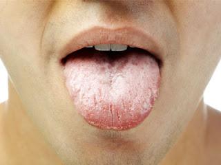 Langue blanche et la mauvaise haleine