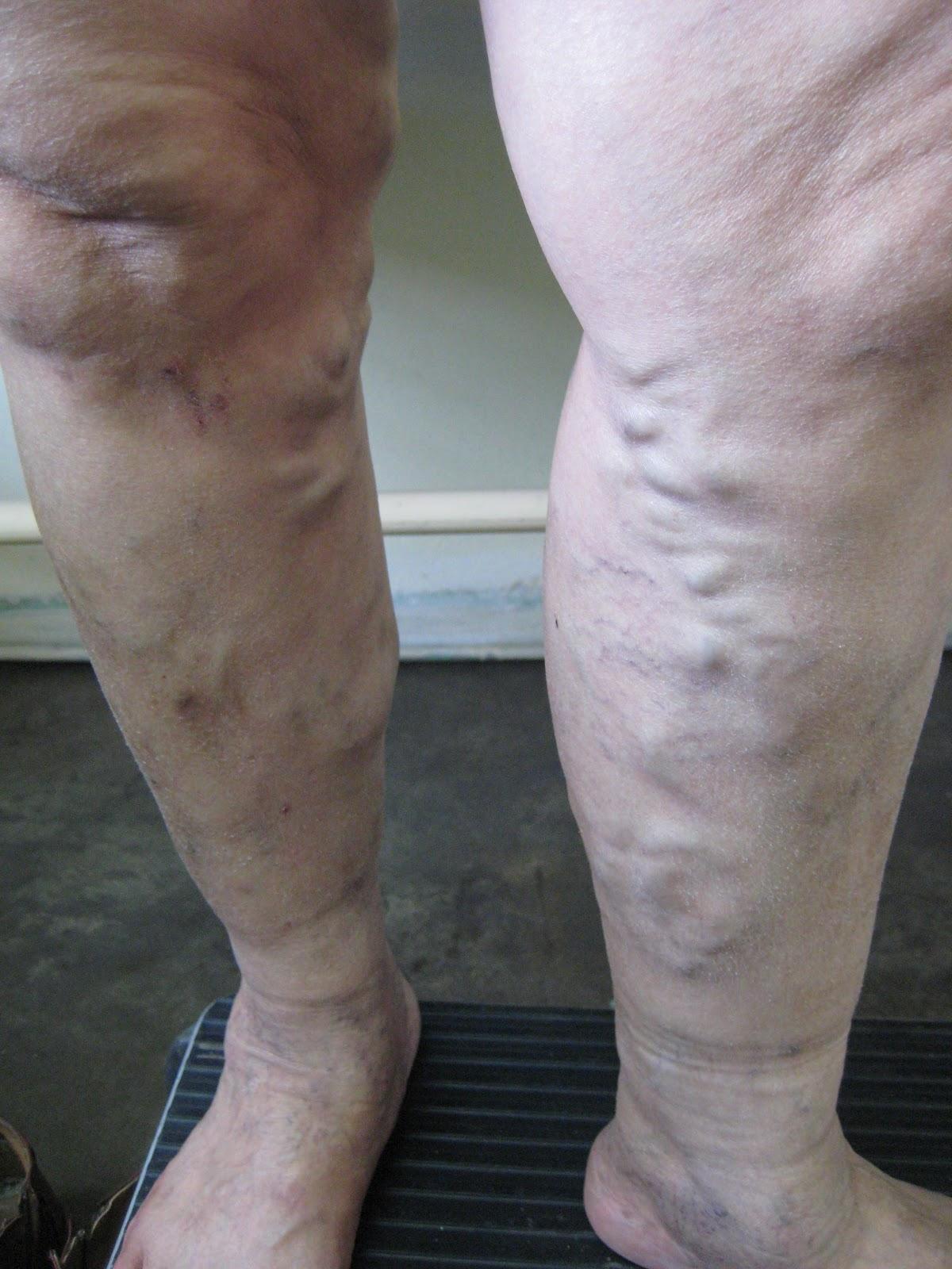 Los síntomas clínicos de la colecistitis crónica y la ascitis los asteriscos vasculares
