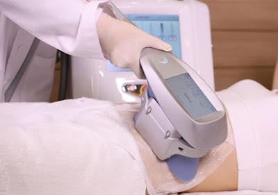 سعر شفط الدهون بالليزر في مستشفى الحبيب
