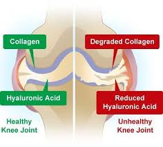 kolagen untuk sakit sendi
