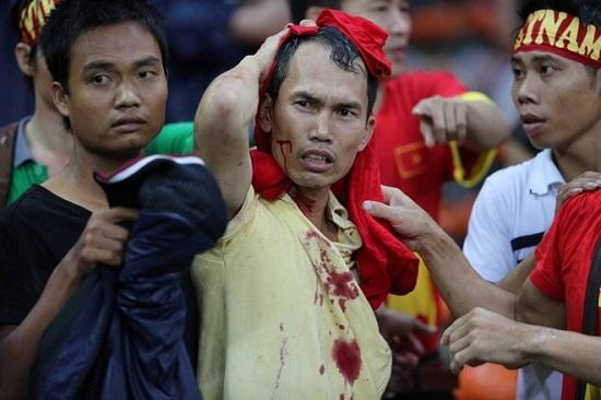 Cổ động viên Việt Nam bị hành hung bạo lực