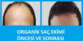 organik saç ekimi şikayet