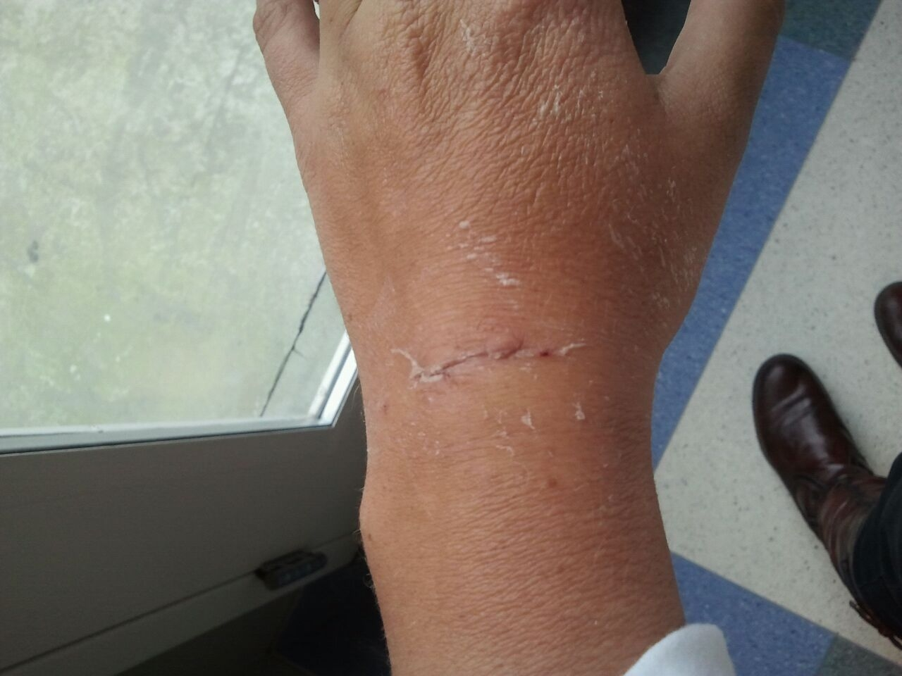 the Horrocks: ganglion cyst no more