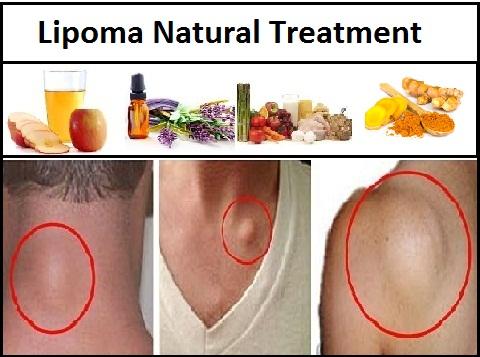 Natural Herbal Treatment: Lipoma Natural Treatment and
