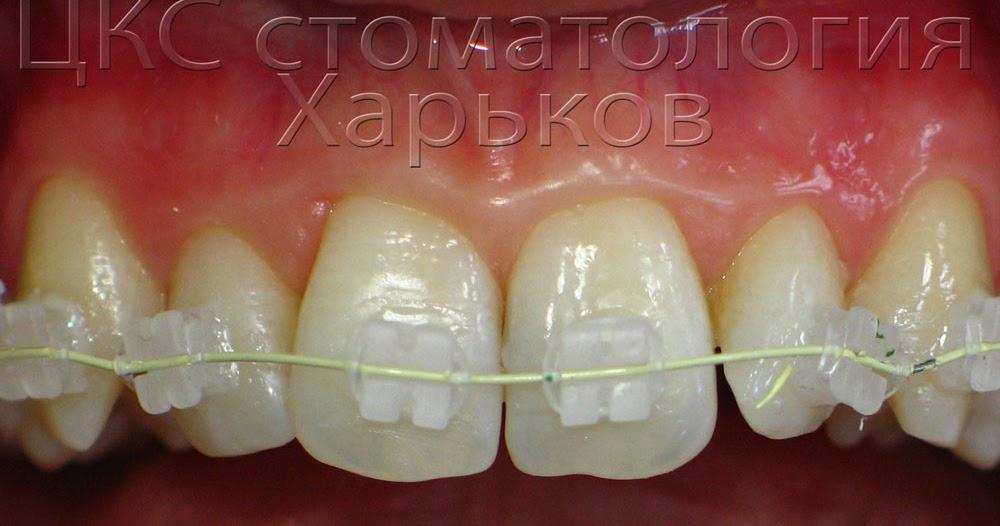 Цвет зубов до брекетов и после