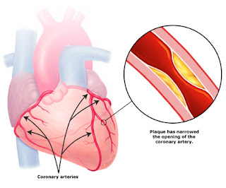 Coronary Artery Disease (Ischemic Heart Disease)