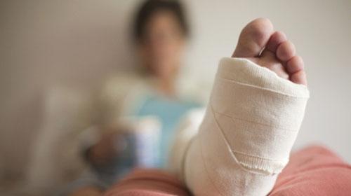 Que cuidados devo ter com o gesso ortopédico?