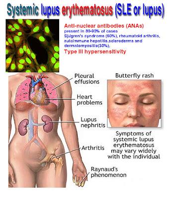 komplikasi lupus