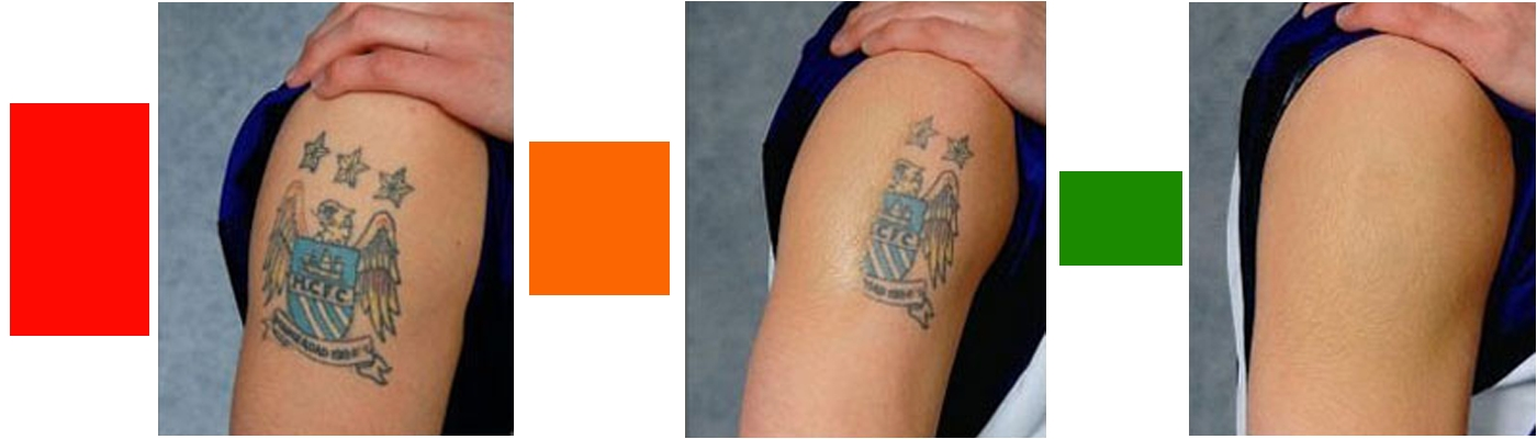 Women laser tattoo removal in delhi care well medical centre for New tattoo removal