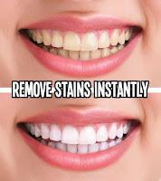 7 Cara Ampuh Memutihkan Gigi Secara Alami