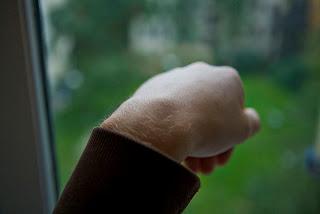 Ganglion: mikor tanácsos kézsebészhez fordulnunk? - Medikids