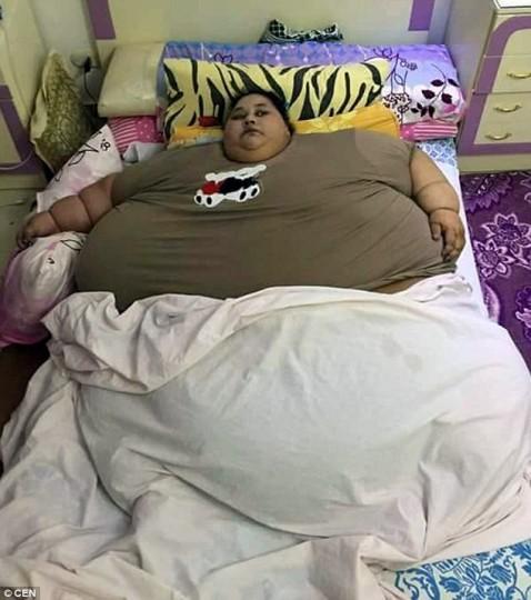 Ζυγίζει 500 κιλά και είναι η πιο παχιά γυναίκα στον κόσμο - ΦΩΤΟ