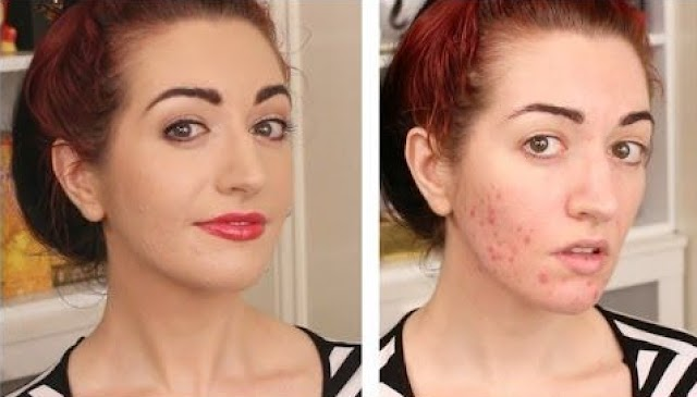 Acne Scars - How to Get Rid of Acne Scars