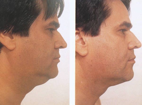 Facial exercises for men