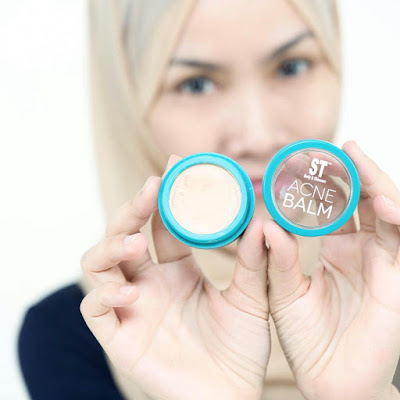 Acne Balm Sendayu Tinggi Review