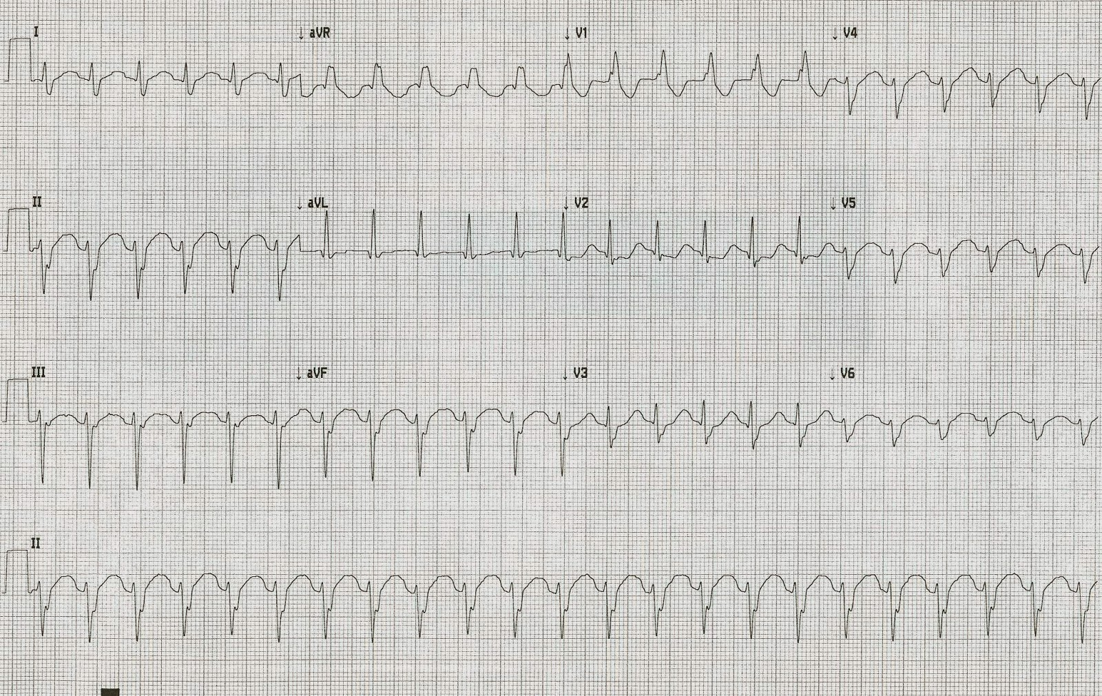 Dr Smith S Ecg Blog Wide Complex Tachycardia What Is The Diagnosis