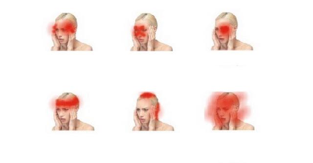 daca unele dureri de cap sunt inofensive, altele pot semnala probleme periculoase