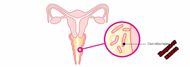 Причини за бактериална вагиноза