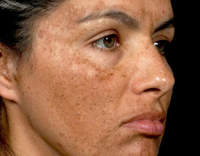 Melasma affecting face