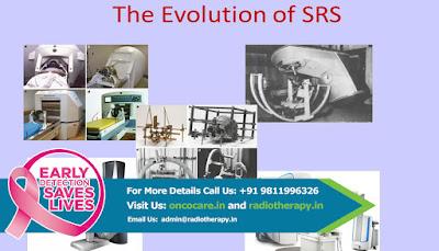 Best Srs Treatment India