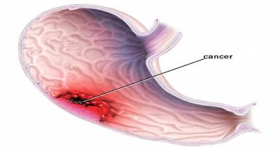 Cancer de l'estomac: un tueur silencieux - Symptômes les plus courants (ne les ignorez pas)