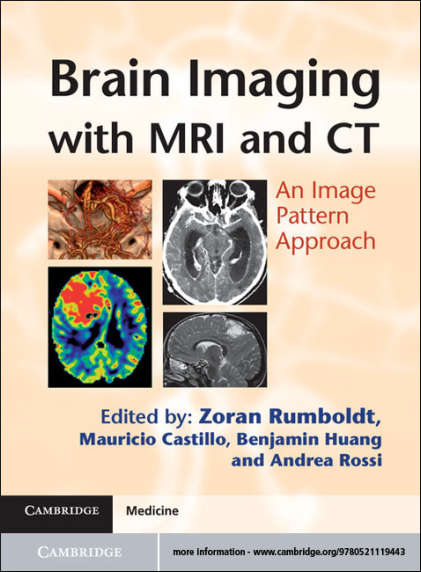 Brain Imaging with MRI and CT [PDF]