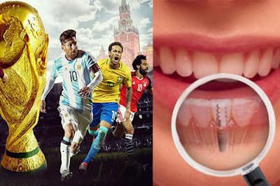 trồng răng implant ở đâu mùa world cup
