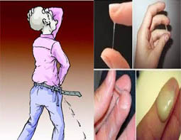 Image Tips ampuh Mengatasi Kemaluan Keluar Lendir Mirip Nanah