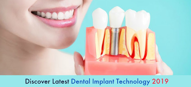 Discover Latest Dental Implant Technology 2019