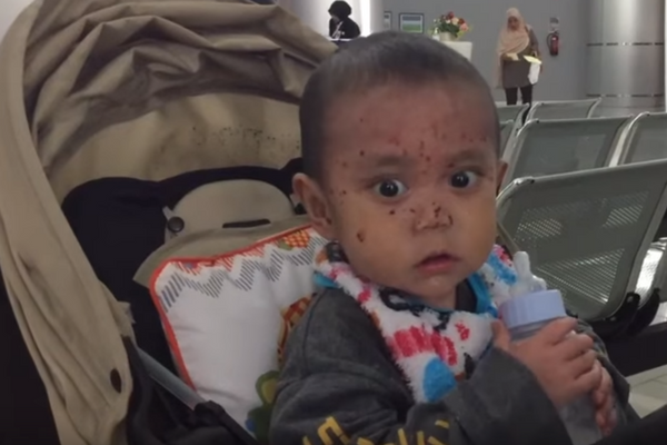 Mengidap Penyakit Kulit Langka, Perjuangan Bayi 1 Tahun ini Bikin Terharu