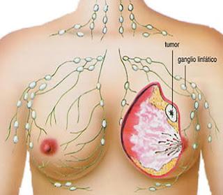 Pengobatan Benjolan Kanker Payudara, Cara Alami Mengatasi Penyakit Kanker Payudara, Cara Ampuh Kanker Payudara