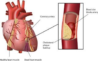Obat Herbal Penyumbatan Pembuluh Darah Jantung