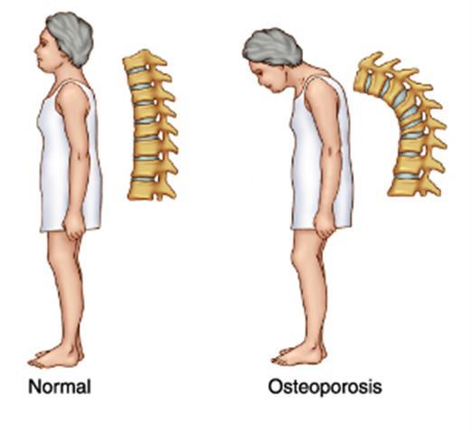 هشاشة العظام (المرض الصامت)وكيفية الوقاية منه