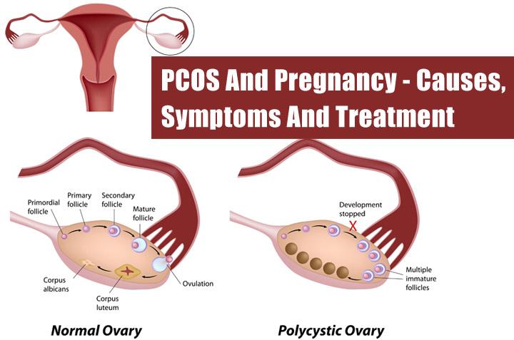 My PCOS Story : Melawan PCOS untuk bisa Hamil